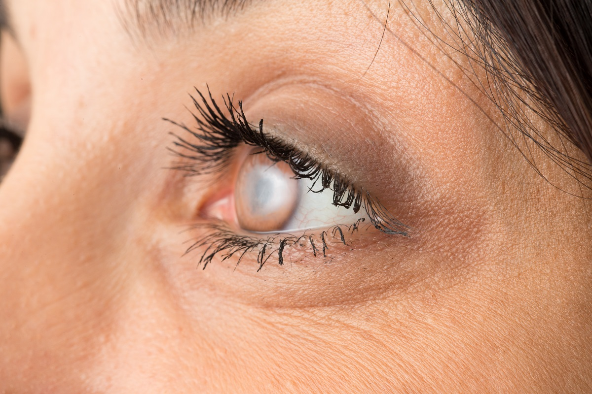 Can cataracts return after surgery?